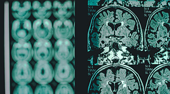 Blodprøve kan avsløre Alzheimers fem år før symptomer viser seg
