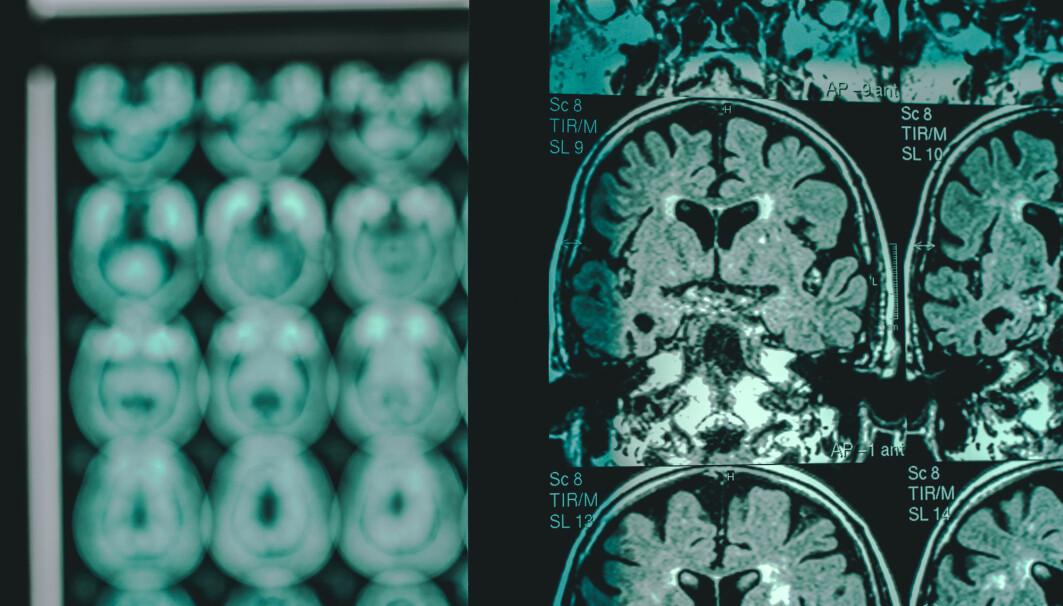 Hittil har man bare kunnet fastslå Alzheimers ved scanning av hjernen eller spinalvæskeprøve. Nå kan en enkel blodprøve-test avsløre sykdommen mange år før den gir merkbare utslag.
