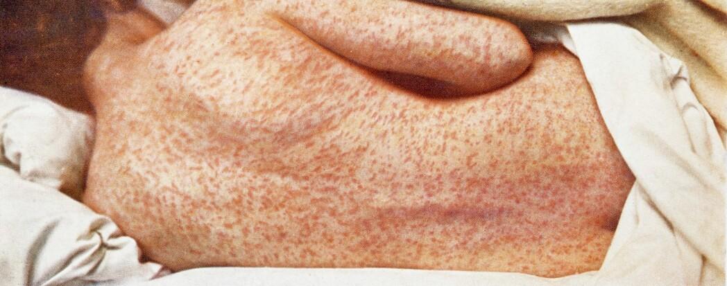 Meslinger gir utslett og feber og kan bli veldig alvorlig for noen.