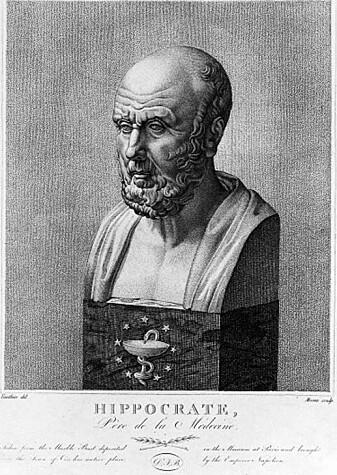 Hippokrates regnes som legekunstens far. Han pekte allerede for 2400 år siden på terapeutiske effekter av å bade i vekselvis kaldt og varmt vann.