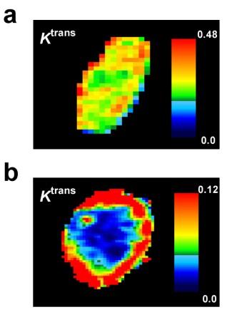 MR-bilder av svulst uten hypoksiske områder (a) og svulst med hypoksiske områder (b). De mørkeste blå områdene i (b) representerer hypoksisk vev. (Foto: (Illustrasjon: Einar K. Rofstad, OUS))