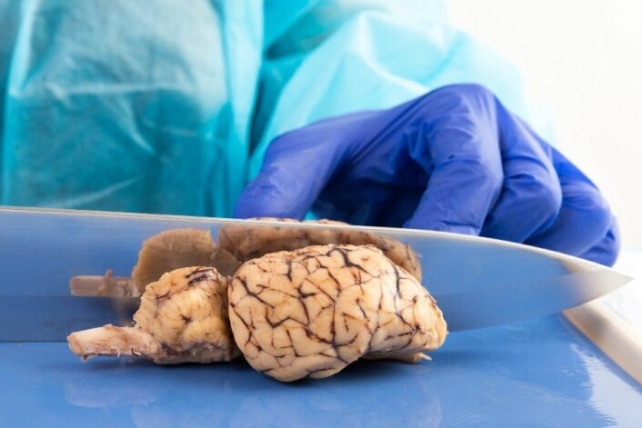 Hjerneforskere gjør alvorlige feil i de statistiske analysene sine, viser en ny undersøkelse. Det fører ofte til feilaktige konklusjoner. (Foto: Oocoskun/Microstock)