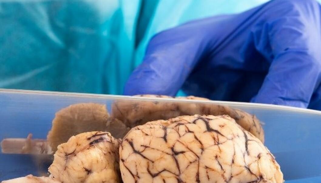Hjerneforskere gjør alvorlige feil i halvparten av studiene sine