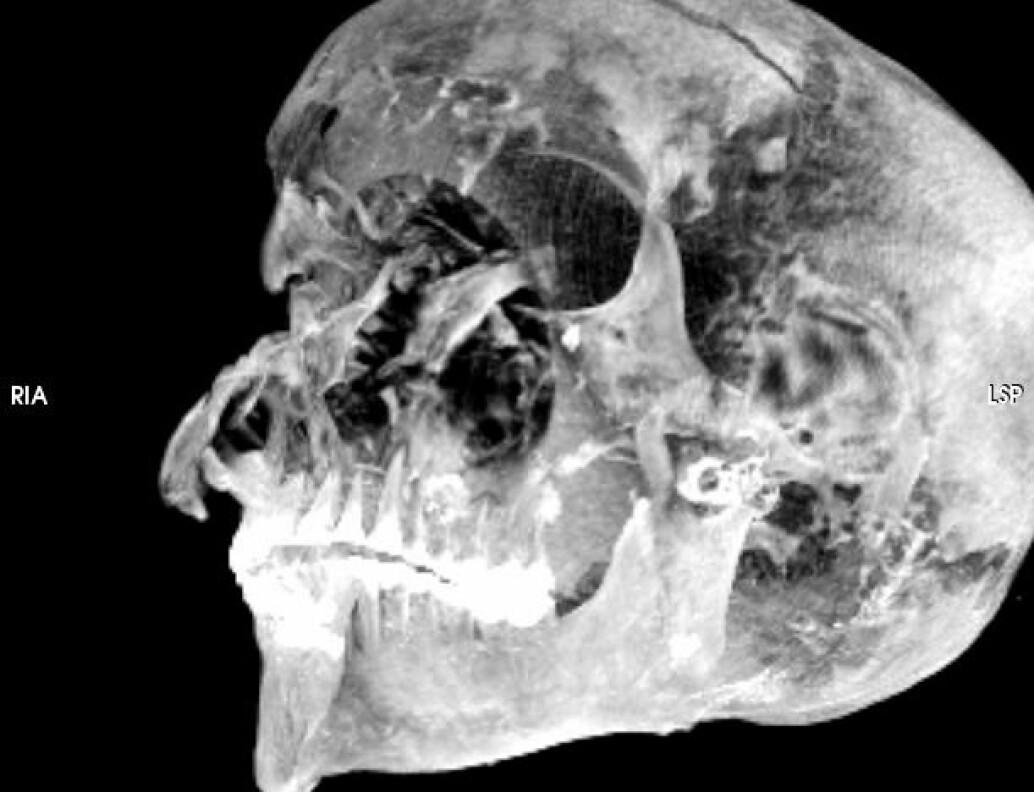 Den skadete hodeskallen til Sekenenra Taa II. På pannen kan du se et av kuttskadene, som sannsynligvis ble påført med våpen.