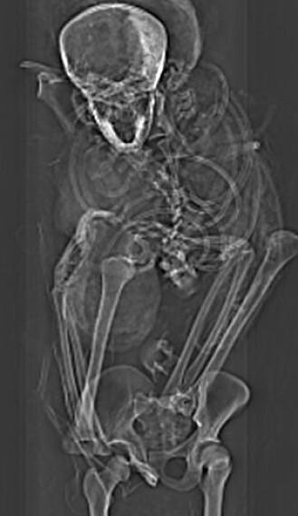 Røntgenbilde av faraoen.