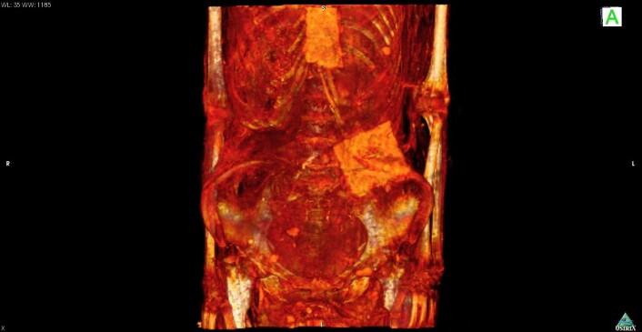 CT-skanningen avslørte de to kartonglignende platene ved kvinnens brystbein og mage. (Foto: Andrew Wade)
