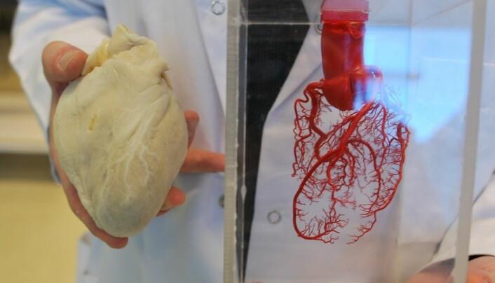 Hjertet i silikon til venstre, hjertet av herdeplast til høyre. Begge vender fremover, slik de satt da de befant seg inne i noens brystkasse. (Foto: Hanne Jakobsen)