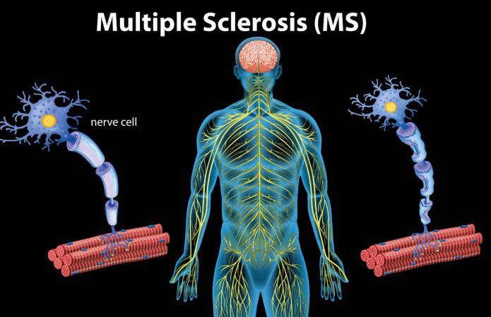 Mulig ny kurs i MS-forskningen