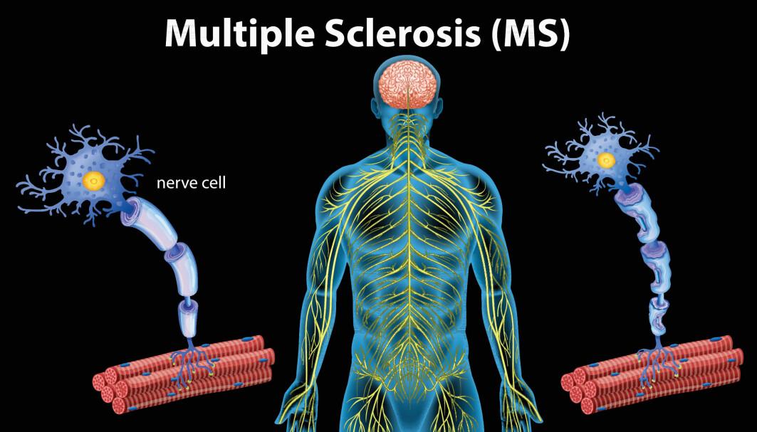 MS-pasienter har mangel på proteiner som er viktig for utviklingen og gjenoppbyggingen av nerveceller, viser ny forskning. Nå kan det være viktig å undersøke tiltak som stimulerer fornyingen i nervesystemet.