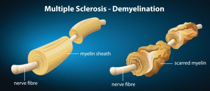 Ifølge den nye studien kan MS primært handle om redusert evne til fornying snarere enn nedbryting. Illustrasjonen viser hvordan isolasjonslaget eller myelinet, rundt nervetråder kan bli ødelagt.
