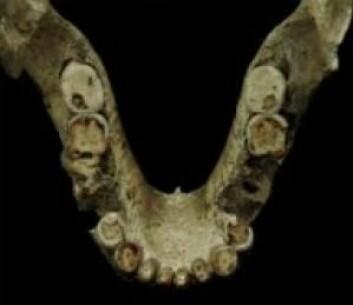 Selv om oldtidsmenneskene hadde mistet en tann eller to – eller alle tennerne – kunne de fremdeles overleve. De hadde nemlig redskaper som de kunne lage grøt med. (Foto: Georgian National Museum)