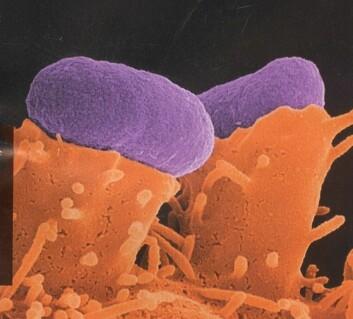 """Her har E. coli (lilla) har festet seg til tarmceller. Foto: Ilan Rosenshine, The Hebrew University i Jerusalem."""