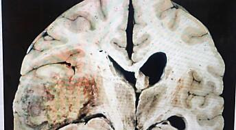 Levende mikrosvulster utenfor kroppen kan gi kur mot hjernekreft