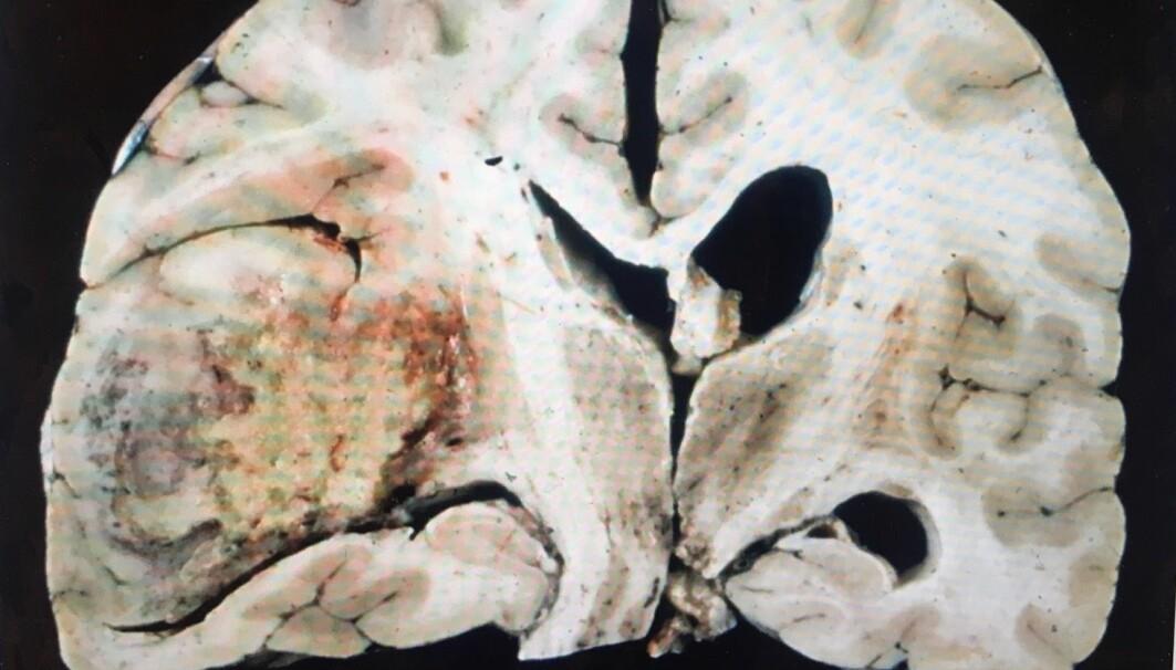 Bildet viser hjernesvulst i høyre del av hjernen. Denne pasienten fikk forlenget livet i fire måneder med en personrettet medisin som virket på hennes svulst.
