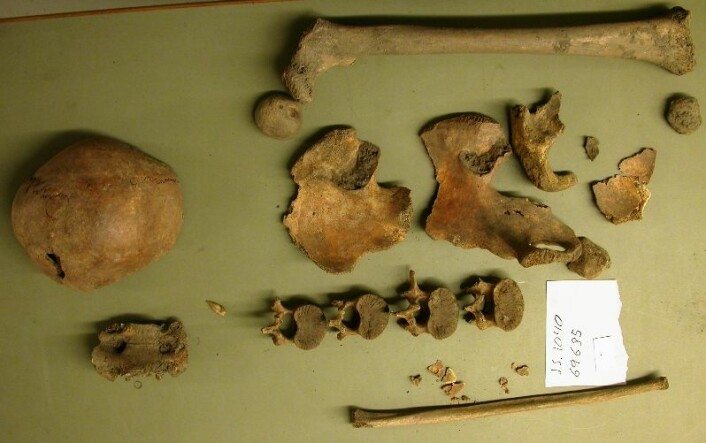 Bildet viser restene av en individ i tenårene. Du ser rester av kraniet til venstre, og et lårbein øverst. Under det, bekkenfragmenter, så fire ryggvirvler, og nederst ligger ett av beina i leggen (fibula). Skjelettet er fra Mariakirken i Bergen. Foto: (Foto: Stian hamre)