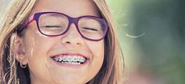 Etter at tannreguleringen blir tatt av vil tennene ofte tilbake til der de var før