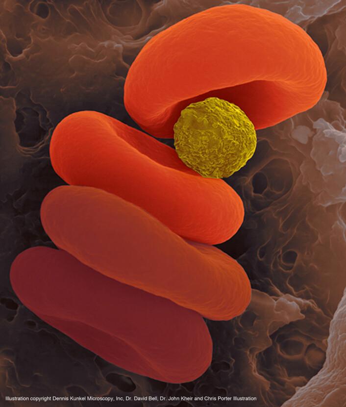Når mikropartiklene møter blodceller uten oksygen, overføres oksygenet fra partiklene umiddelbart. (Foto: D. Kunkel/Dennis Kunkel Microscopy, Inc., D. Bell/Harvard University, J. Kheir/Children's Hospital Boston, C. Porter/Chris Porter Illustration)