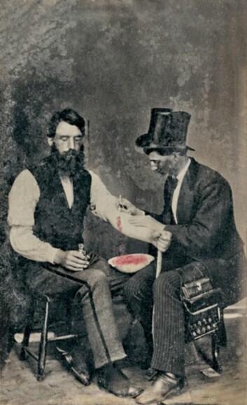 Ett av tre kjente fotografier av årelating. Bildet er tatt i USA i 1860. (Foto: The Burns Archive/Wikimedia Commons)