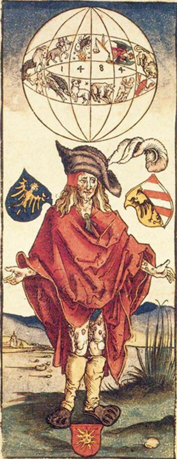 Mann med syfilis, antageligvis lagd av Albrecht Dürer (1496). Årstallet 1484 refererer ikke til datoen for verket, men kanskje til en uheldig stjernestilling som kunne ha skylda for sykdommen. (Foto: PhilippN/Wikimedia Commons)