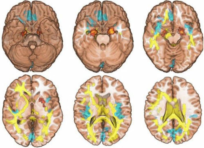 Hjerneskanningar av syskenpar der den eine misbruker narkotika og den andre ikkje. (Foto: (Illustrasjon: Science))