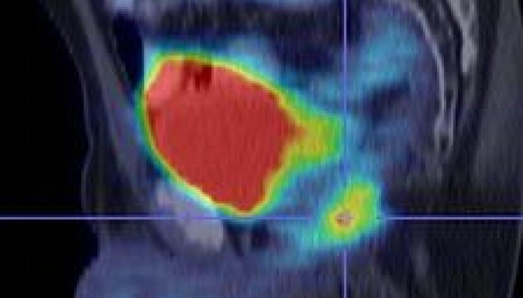 """""""57 år gammel pasient 3 år etter at endetarmen hadde blitt fjernet for tarmkreft. Stigende tumormarkør i blodprøver tydet på at sykdommen var kommet tilbake. Snittrøntgen (CT) viste ingen forandringer. I PET fins et område med økt druesukkerforbrenning bak blæren, som viser tilbakekomst av kreften. (ill. og kasus gitt av Martin Biermann)"""""""