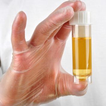 Infeksjon kan fastslås med en urinprøve. (Foto: Colourbox)