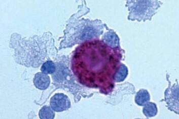 Her er et mikroskopbilde fra bukhulen til en mus 48 timer etter at forskere har sprøytet inn kreftceller. Kreftcellene er omringet av immunceller, som er i ferd med å drepe dem. (Foto: København Universitet)