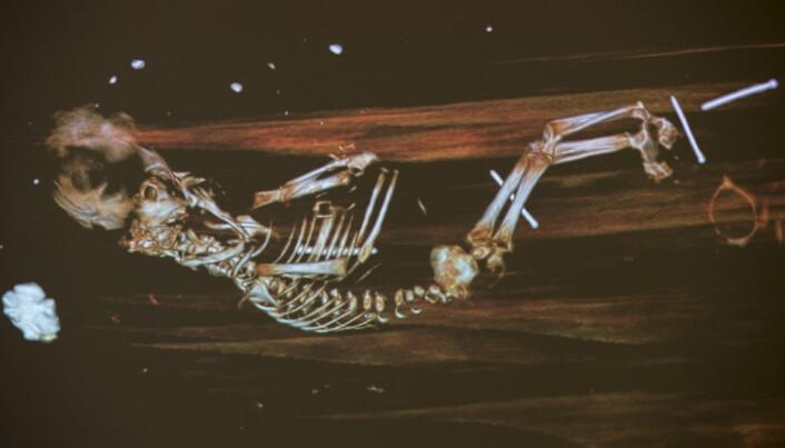 Her er røntgenbilde av fosteret, som sannsynligvis er barnebarnet til Peder Winstrup.