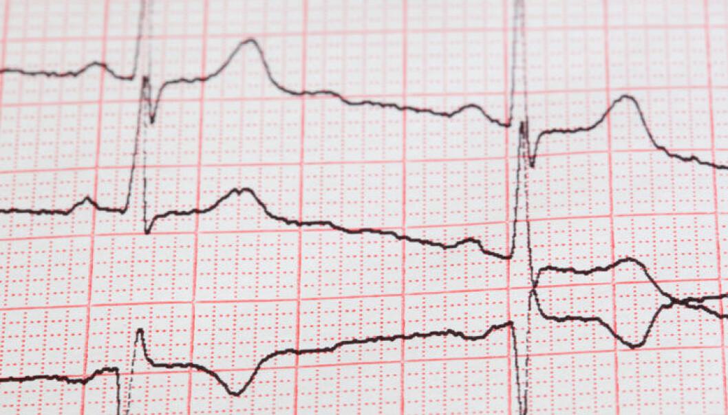 Forskere finner genfeil som gir epilepsi