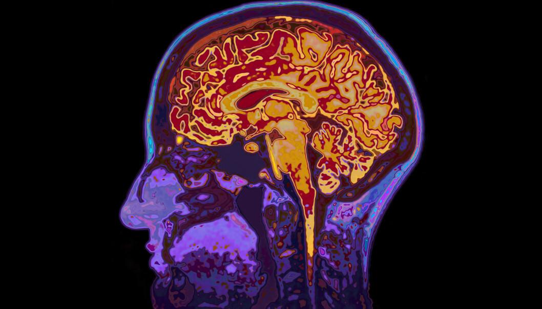 Hukommelsen din er avhengig av flere forskjellige deler av hjernen.