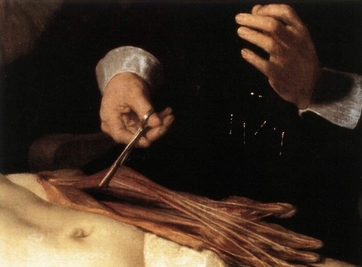 Kva er det med denne underarmen som gjorde at den vart eit mysterium? Og gjorde Dr. Tulp og Rembrandt ein anatomisk feil? (Foto: Wikimedia commons)
