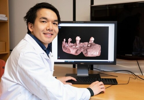 Synthetic bone graft for bone regeneration