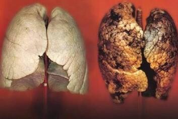 Men i dag vet vi at pusteredskapene blir fulle av gørr hvis vi inhalerer tobakkrøyk. (Foto: Helsedirektoratet)