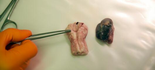 – Skrantesjuke hos hjortedyr er en skummel og snikende sykdom