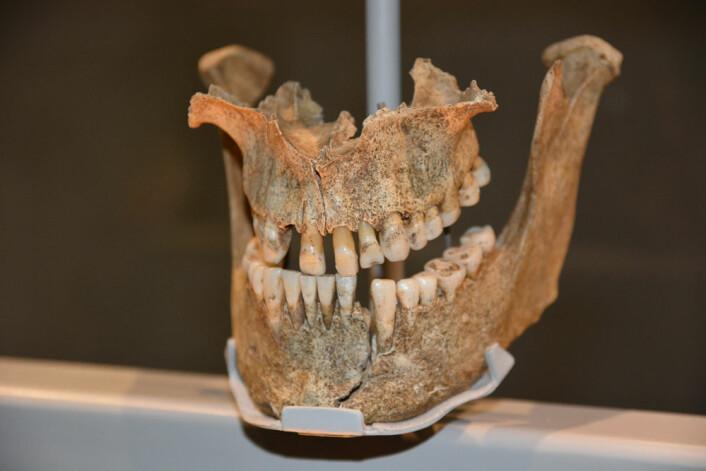 Denne vikingen filte fortennene sine for å skape et fryktinngytende inntrykk, tror fagfolkene bak utstillingen. Kanskje han også farget dem for å skremme litt ekstra. Dorset i England, 975-1025. (Foto: Ida Kvittingen)
