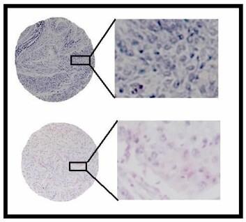 Figuren viser farging for biomarkøren miR-126 (blå farge) i lungekreftvev. Denne biomarkøren er knyttet til angiogenese, og de med mye miR-126 (øverst) har en dårligere prognose enn de med lite miR-126 (nederst). (Figur: Tom Dønnem, UiT)