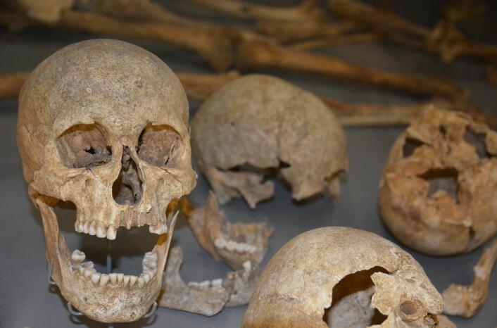 En grav med 54 skandinaver viser et vikingtokt i England rundt år 1000 som gikk svært galt, og endte med henrettelse. (Foto: Ida Kvittingen)