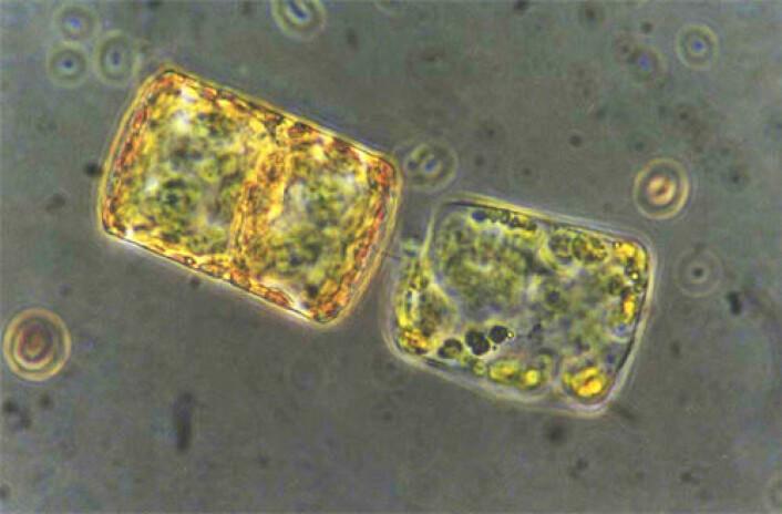 To kiselalger som har hektet seg sammen, sett gjennom mikroskop. Disse tilhører arten Thalassiosira bioculate. (Foto: Else Nøst Hegseth)