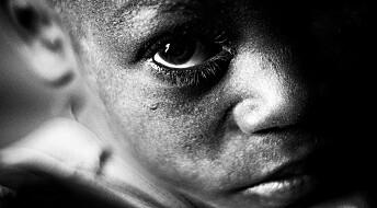Barnekreft i u-land en økende helsetrussel