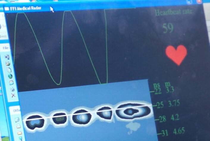 Radaren viser puls ut fra ørsmå bevegelser i huden på grunn av hjerteslagene. (Foto: Arnfinn Christensen, forskning.no.)