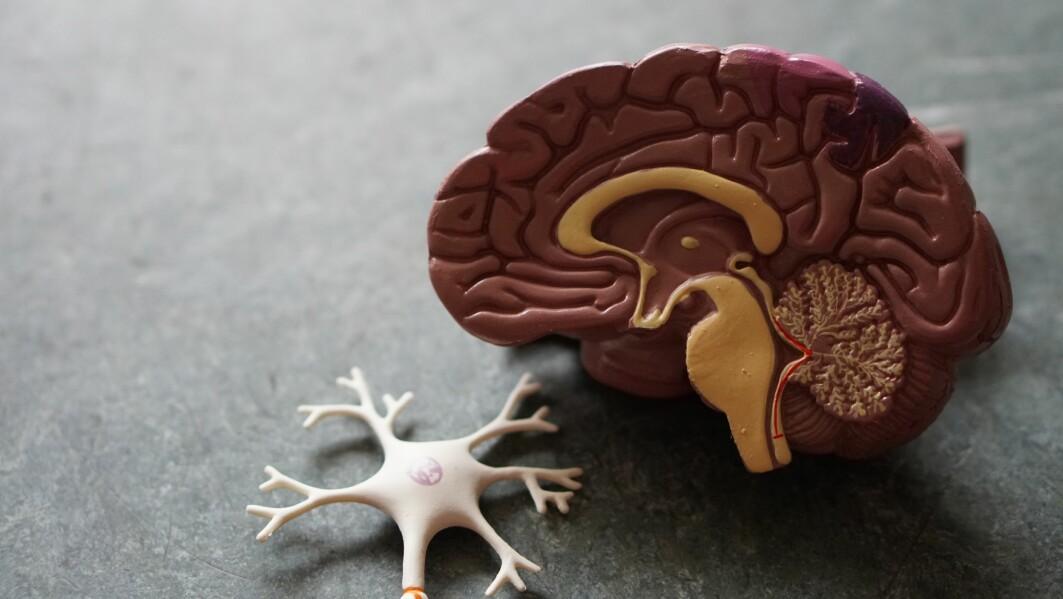 Det er alltid elektrisk aktivitet i hjernen, både når du sover og er våken. Til sammen kan aktiviteten måles utenpå skallen med EEG, en metode for registrering av denne aktiviteten.