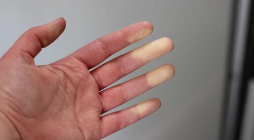 Får du hvite fingre når det blir kaldt? Nå vet forskere mer om hvem som blir rammet