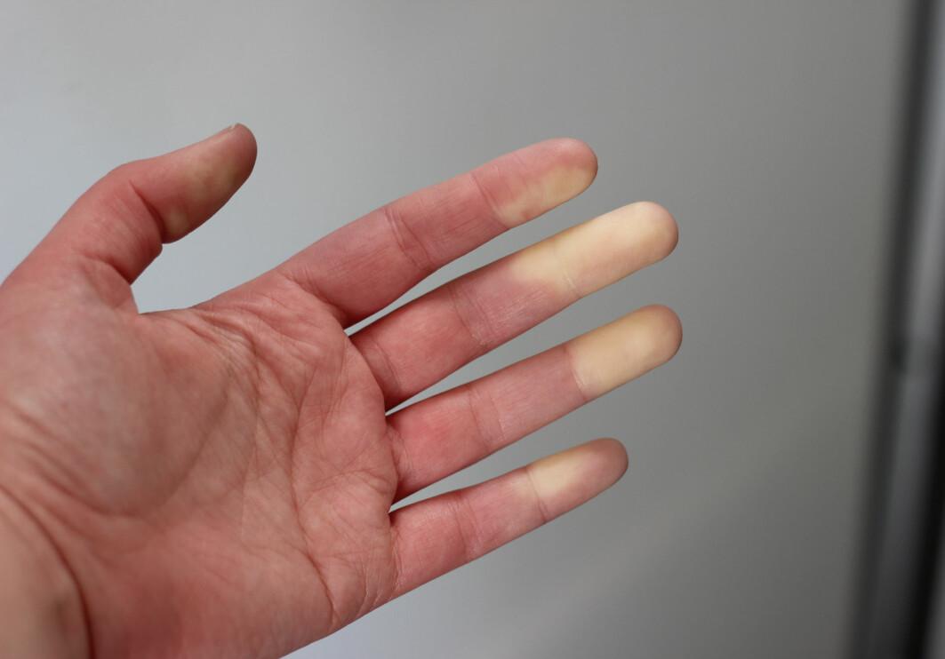 Slik ser hendene ut når du blir rammet av Raynauds fenomen. Det er ofte en skarp grense mellom den hvite huden og den normale. Fingrene kan føles kalde, sitrende, numne og smertefulle.