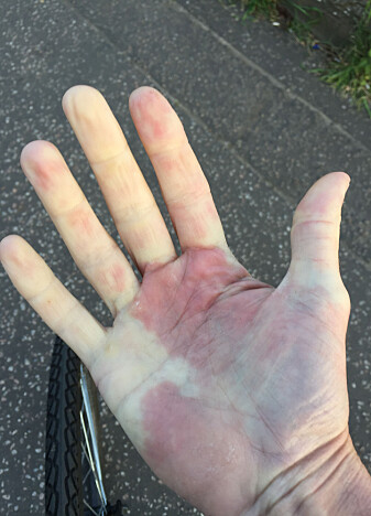 Sånn kan det gå hvis du sykler i kaldt vær uten hansker.