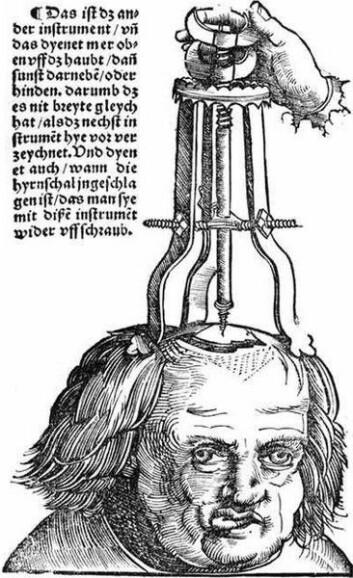 På 1700 og 1800-tallet florerte det med behandlinger som vi i dag vil kalle alternative. Noen av dem var virkningsløse, noe man beviste ved blindforsøk, men hadde likevel en effekt via pasientens tanker. (Illustrasjon: Hans Wechtlin)