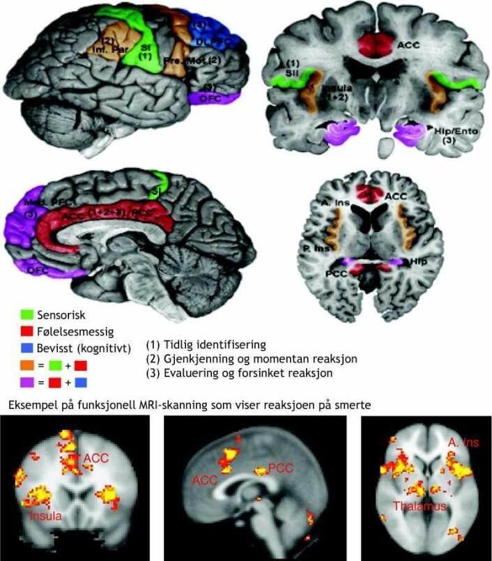Figurene viser hvordan forskerne tror smerte behandles i hjernen. (Figur: Borsook D, Moulton EA, Schmidt KF, Becerra LR., Creative Commons, se lisens. Figuren er oversatt og bearbeidet av forskning.no)