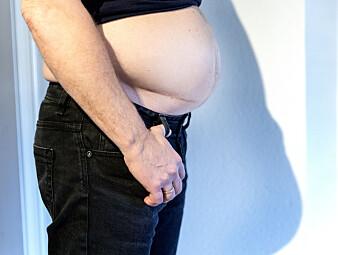 Menns magefett er farligere enn kvinners