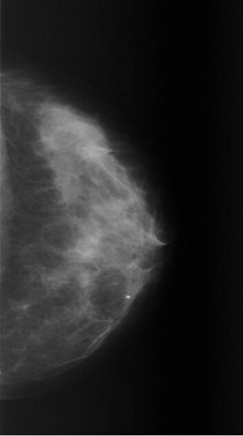 På mammogrammet er det områder som er lyse (radiotette) og områder som er mørke. (Foto: Giske Ursin)