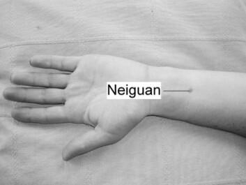 """""""Omtrent to fingerbredder oppover underarmen fra håndleddet finner du presspunktet (Neiguan) mot kvalme. Her kan man trykke i 20-30 minutter. Man kan også bruke et eget armbånd som gir et lett, kontinuerlig trykk på dette punktet."""""""
