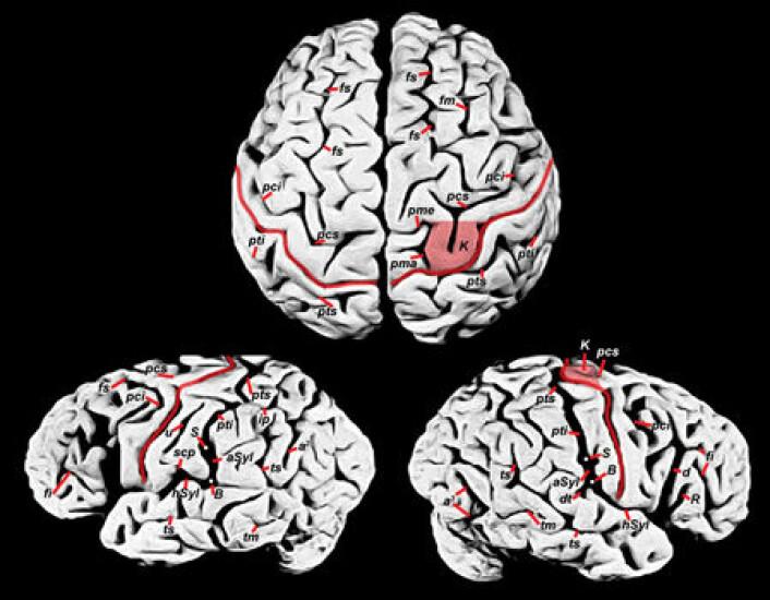 """""""Einsteins hjerne. Hadde den trekk som kan forklare hans genialitet? (Foto: Dean Falk/S. Witelson et al., The Lancet, 353, 19 June 1999)"""""""